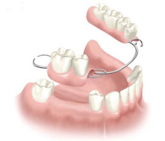 dental removable prothesis